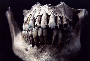 Modified teeth found at the site of Ixtontón. Image via Mesoweb